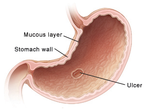 Cross section of stomach showing ulcer.