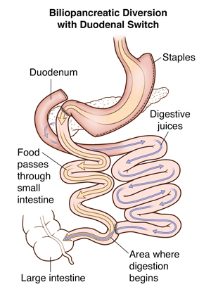 Front view of stomach showing biliopancreatic diversion with duodenal switch. Arrows show path of food and digestive fluids.