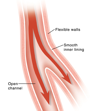 Cross section of healthy artery with normal blood flow.