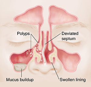 Front view of sinuses with polyps, mucus buildup, deviated septum and swollen lining.