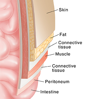 Cross section of abdominal wall over intestine showing layers: skin, fat, fascia, muscle, and peritoneum.